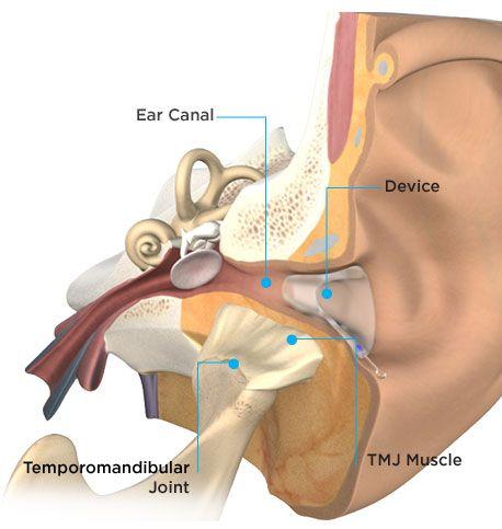 Tmj Nextgeneration Ear And Jaw Anatomy Daniel Ganc Md