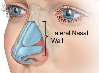 danielgancmd-lateral-wall-anatomy