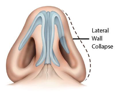 danielgancmd-lateral-wall-collapse